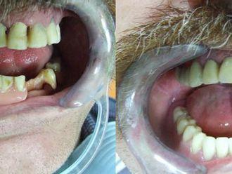 Implanty zębowe - 655989