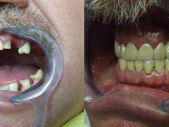 Implanty zębowe - 655992