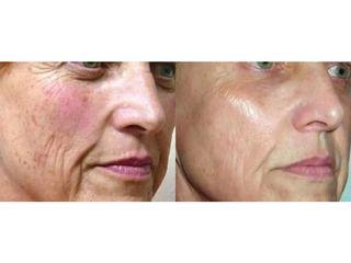 Laserowe odmladzanie skóry: przed i po