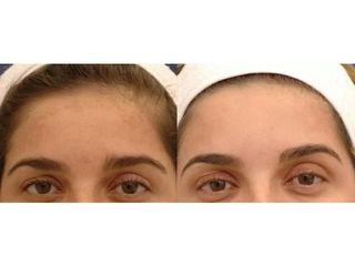 Fotoodmładzanie: przed i po