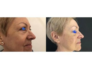 Przed i po - anti-aging