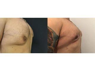 Przed i po - Ginekomastia