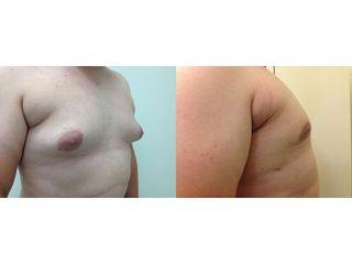 Przed i po - ginekomastii - liposukcja.