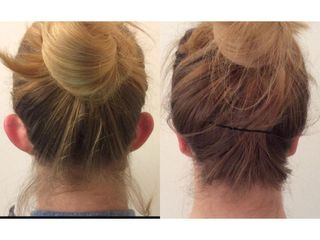 Przed i po - Korekcja uszu