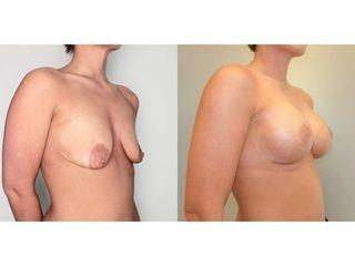 Podniesienie i powiększenie piersi - przed i po