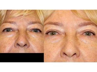 Plastyka powiek górnych - przed i po
