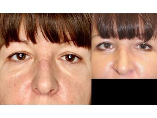 Plastyka powiek dolnych - przed i po