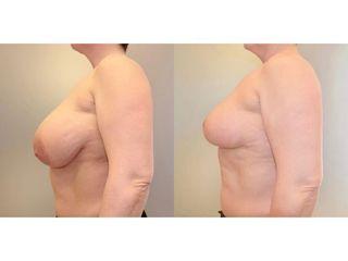 Redukcja piersi - przed i po