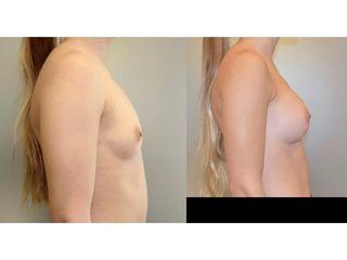 Powiększanie piersi - przed i po