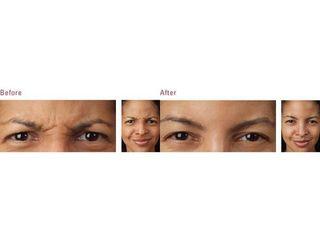 Botoks: przed i po