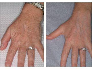 Laser frakcyjny na  dłonie - przed i po