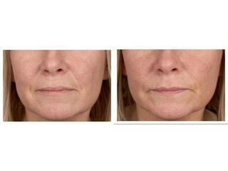 Botoks na bruzdy wargowo-nosowe - przed i po