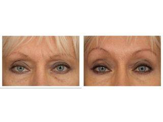 Korekta okolicy oka - przed i po