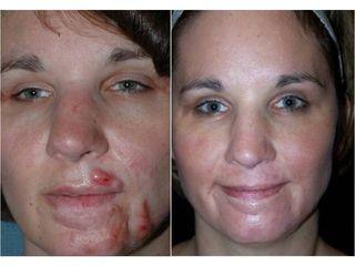 Usuwanie blizn laserem frakcyjnym - przed i po