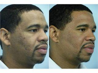 Laser frakcyjny - przed i po