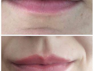 Powiększanie ust kwasem hialuronowym-776255