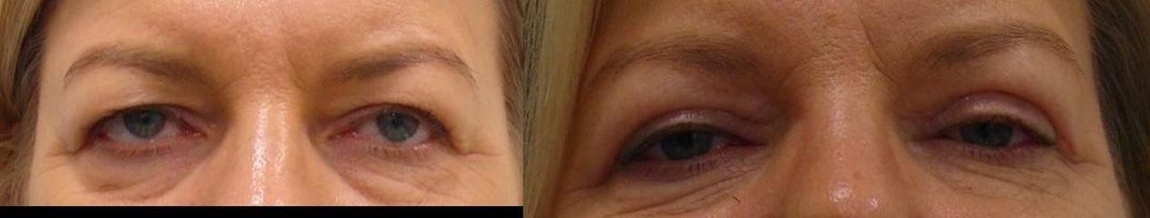 Korekcja powiek: przed i po