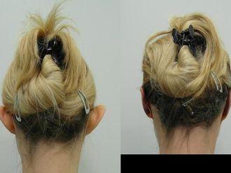 Korekcja uszu (Otoplastyka)-655698