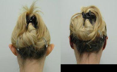 Korekcja uszuKorekcja uszu: przed i po