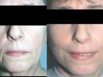 Facelift, Lifting twarzy (podciąganie powłok twarzy) - 655700
