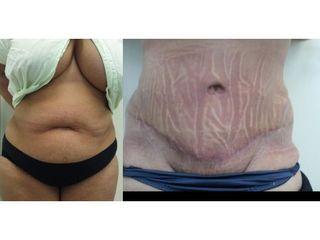 Abdominoplastyka z liposukcją - przed i po
