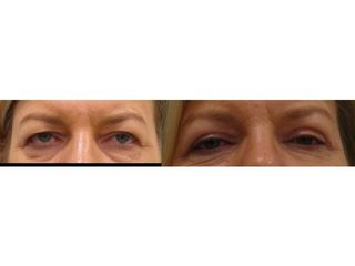 Korekcja powiek - przed i po