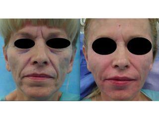 Lipofilling twarzy - przed i po