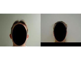 Korekcja uszu-687578