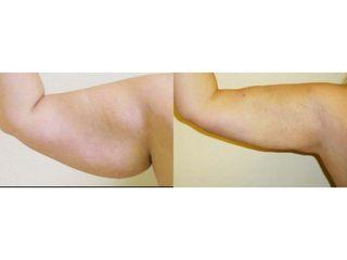 Liposukcja ramion - przed i po