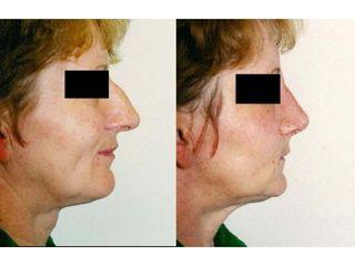 Operacja plastyczna nosa - przed i po
