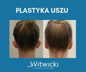 plastyka_uszu