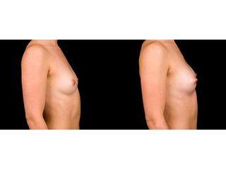 Powiększanie piersi Macrolane - przed i po