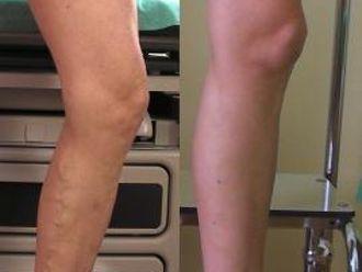 Laserowe leczenie żylaków EVLA-656176