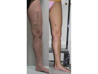 Przed i po - Leczenie żylaków