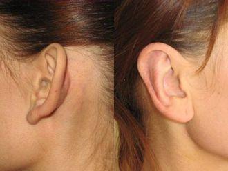 Korekcja uszu-651304