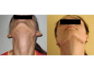 Korekcja uszu-691131