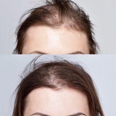 Leczenie łysienia - przed i po