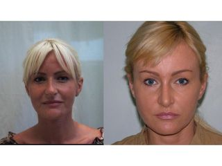 Endotine - implanty (alternatywa browlift, foreheadlift, facelift, necklift)