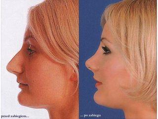 Przed i po: korekcja nosa