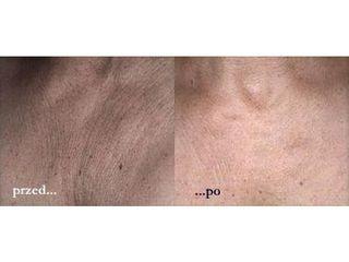 Przed i po: peeling chemiczny