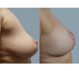 podniesienie piersi 2