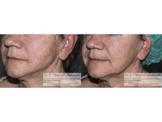 Przed i po - nieoperacyjny lifting twarzy nićmi strong
