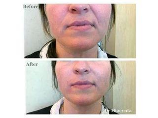 Przed i po - wypełnienie bruzd nosowo-wargowych