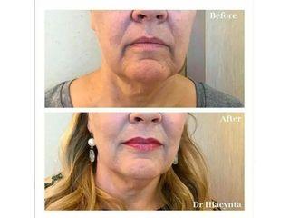 Przed i po - Wypełnienie ust i linii marionetek kwasem hialuronowym