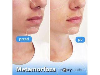 Przed i po - kwas hialuronowy