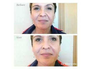 Przed i po - kwas hialuronowy na bruzdy nosowo wargowe 1ml