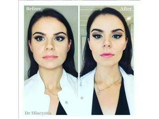 Przed i po - wyszczuplenie twarzy botoksem