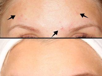 Laserowe leczenie trądziku-796383