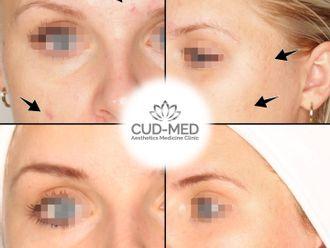 Laserowe leczenie trądziku-796384