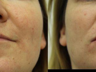 Powiększanie ust kwasem hialuronowym-657931
